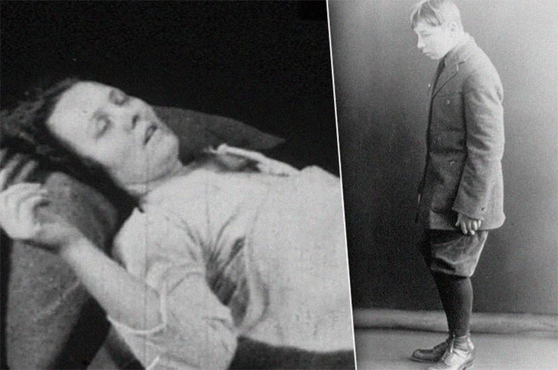 Пациенты могли заснуть где угодно, и при каких угодно обстоятельствах, к примеру, во время еды.