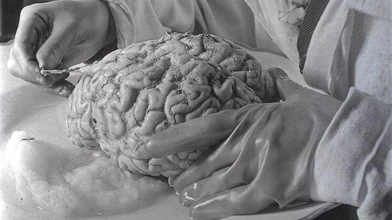мозг Ленина исследуют.